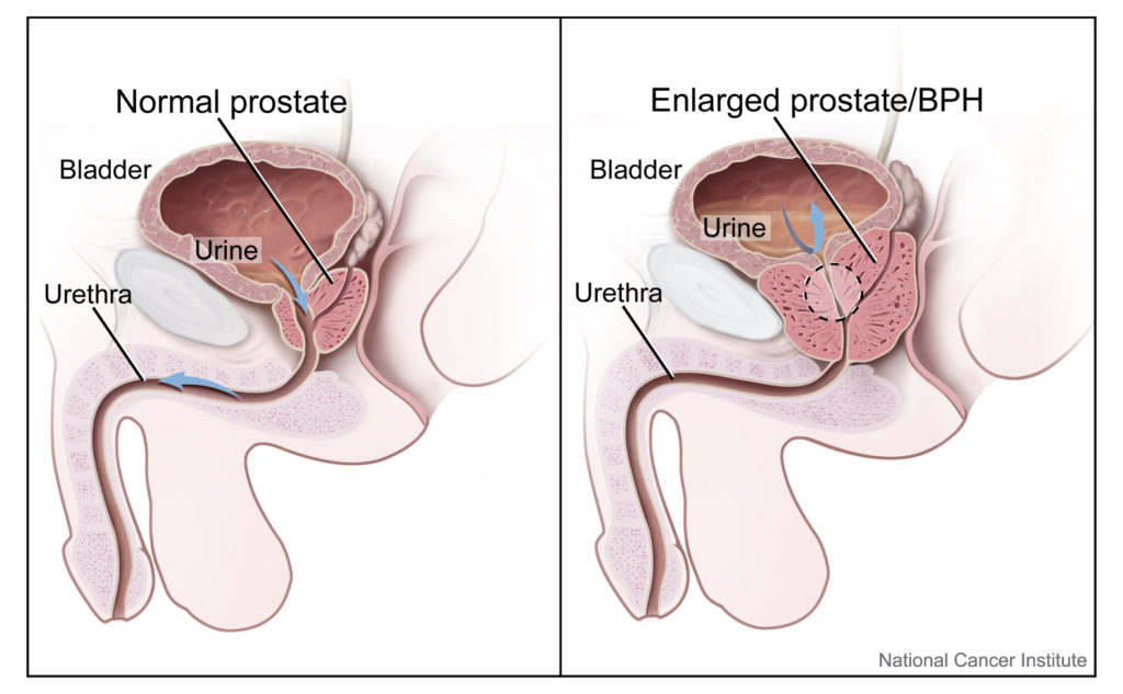 Prostate: size and location (normal and enlarged)
